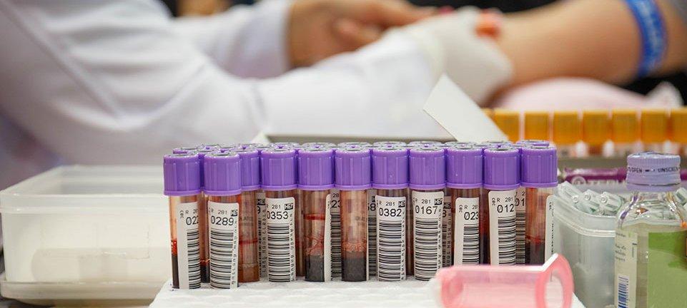 blood samples.jpg